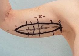 Rimodellamento con brachioplastica/ lifting braccia