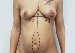 Combined Surgery Corpo