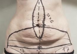 Trattamento diastasi e ernie con addomniplastica