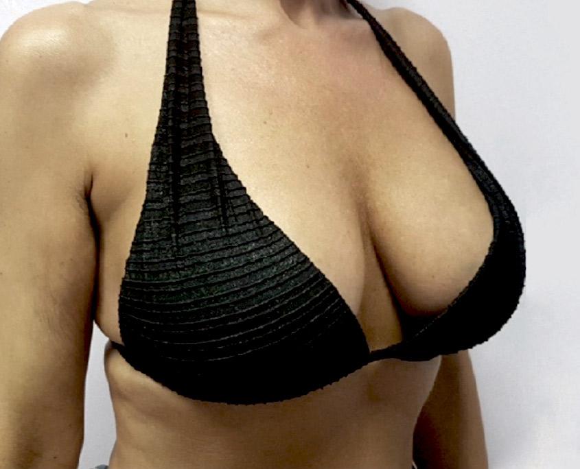 sollevamento del seno dopo il costo di perdita di peso