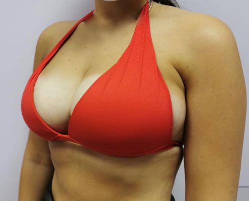 seno rifatto senza protesi